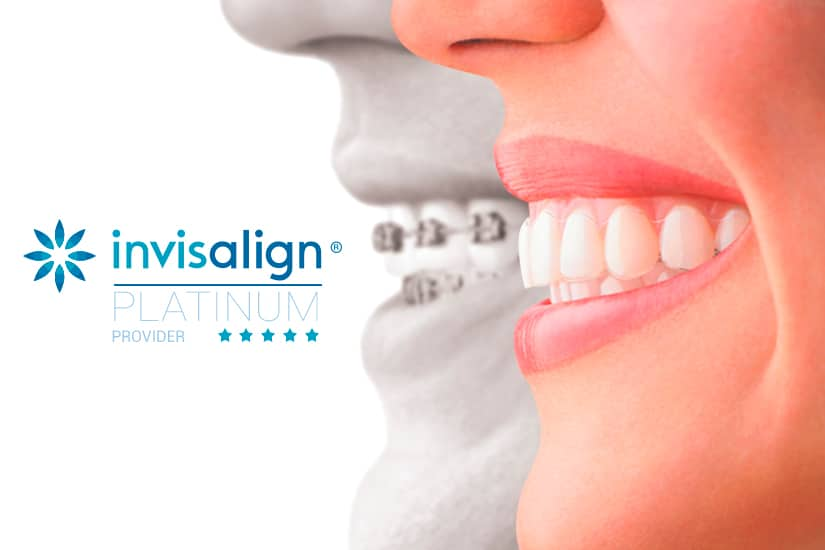 We are Platinum Provider Invisalign Valencia
