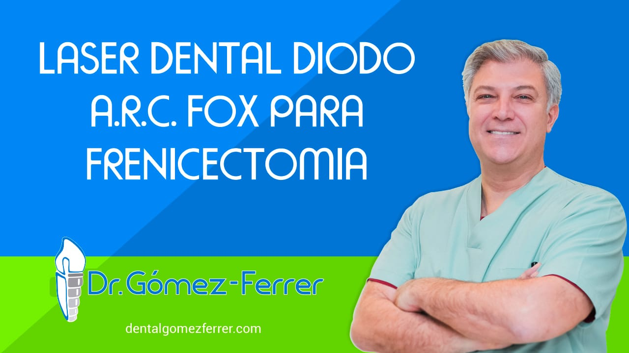 Laser Dental Diodo A.R.C. FOX para Frenicectomia