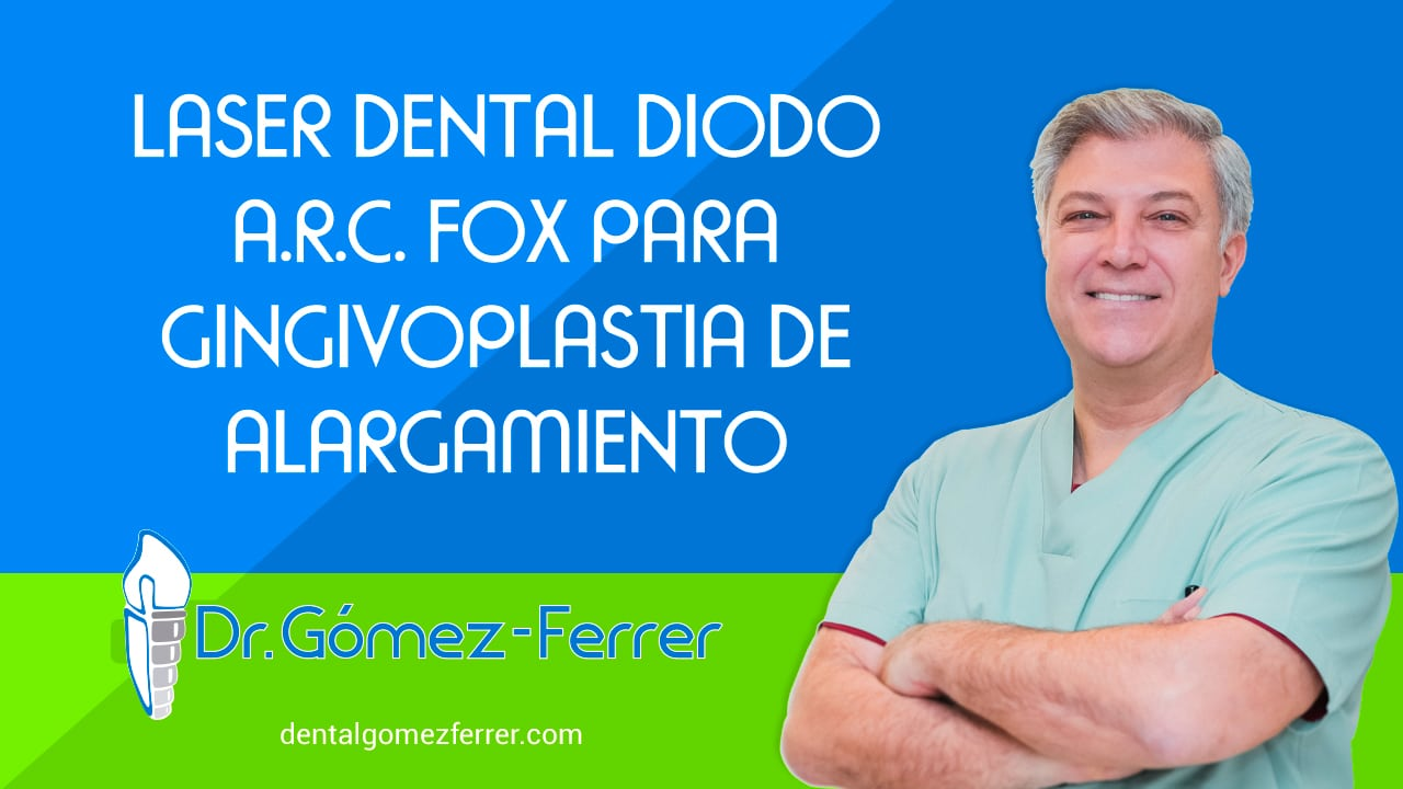 Laser Dental Diodo A.R.C. FOX para Gingivoplastia de alargamiento