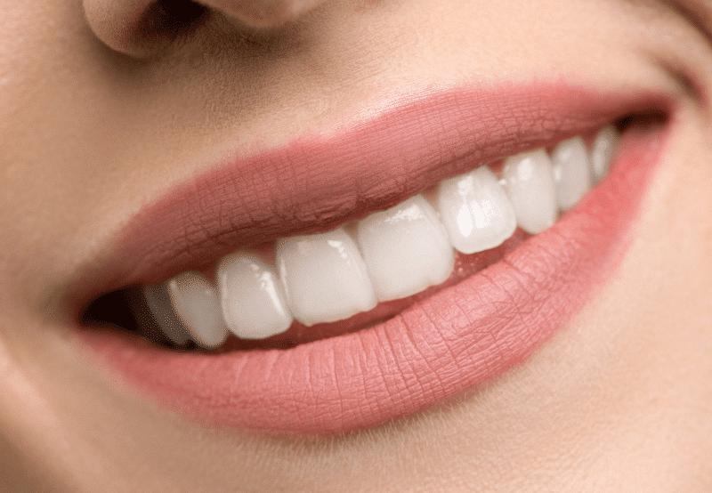 Encías en estética dental en la clínica dental Gómez-Ferrer en Valencia